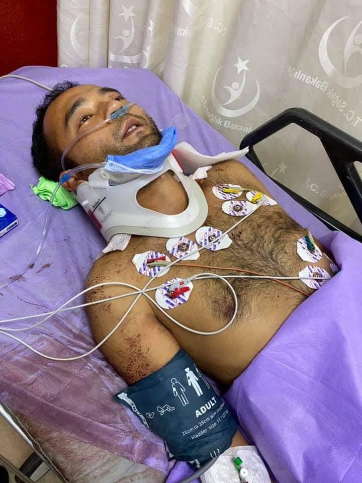 Uygur Türkü İstanbul'da vuruldu.